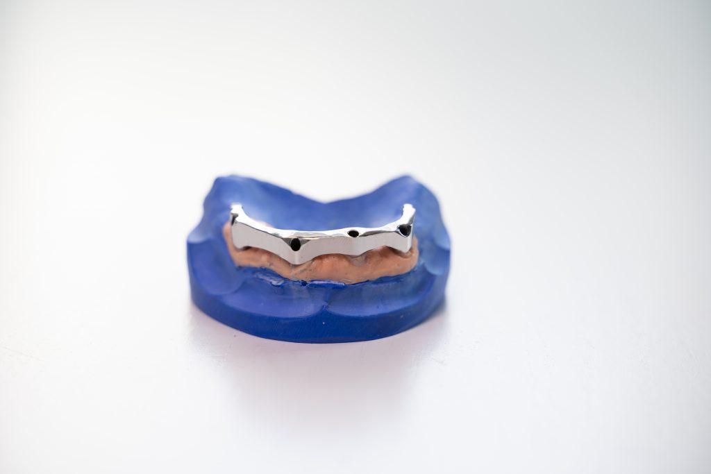 Teilprothese als Zahnersatz