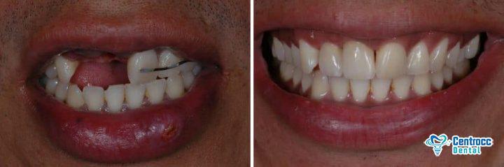 Lacheln mit und ohne Zahnimplantat