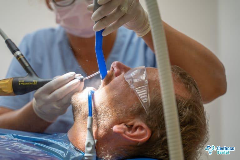 Behandlung von Zahnfleischentzündung: Zahnsteinentfernung