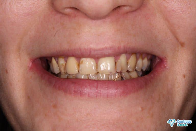 Loch im Zahn oder Caries