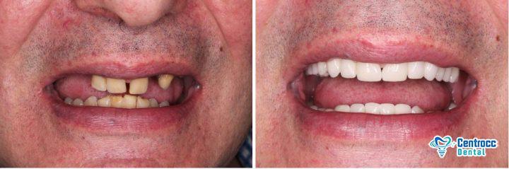 6 Zahnimplantate