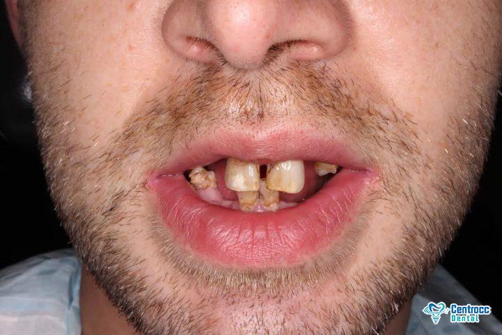 Hässliche Zähne und Parodontitis