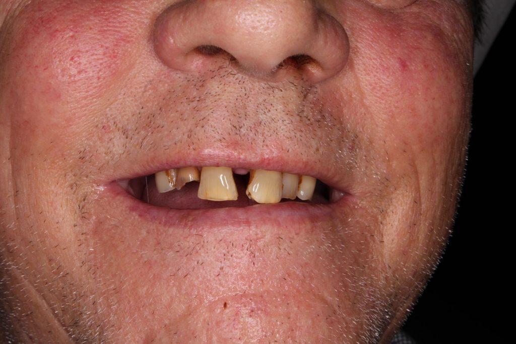 Parodontitis. und Zahnfleischerkrankung