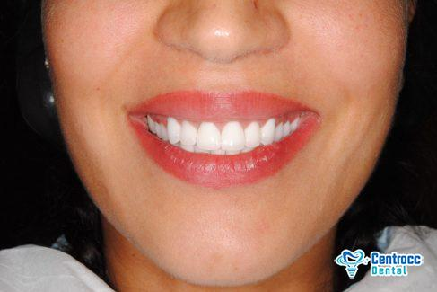 Perkefte Zähne