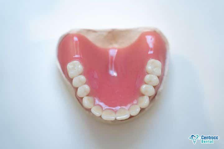 Vollprothese als Zahnersatz