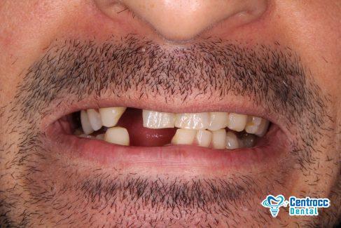 Zahnkrone Vorher