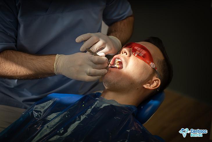 zahnschmerzen zahnarzt